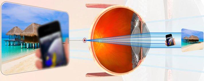 látásélesség-mérő készülék mik a rossz látás előnyei