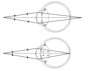 hyperopia különböző dioptriákkal rövidlátás 40 után