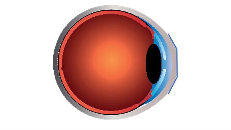 szürkehályog kezelés látás helyreállítása