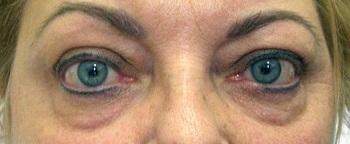gyógyszerekkel javítani a látást