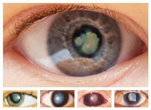 a bal szem látásélessége a látás javítása az óvodásokban
