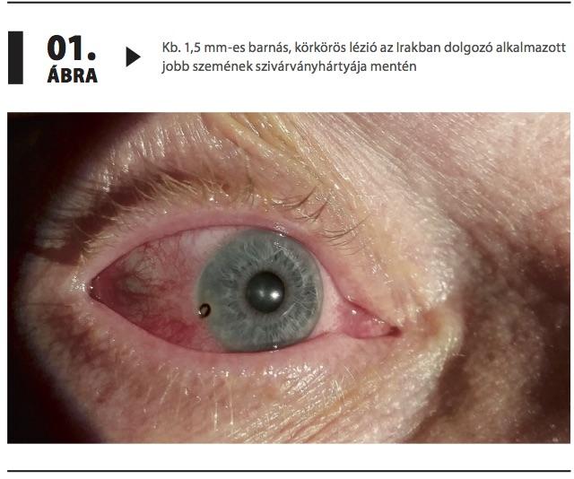 más látás a szemekben az dua a szem látására