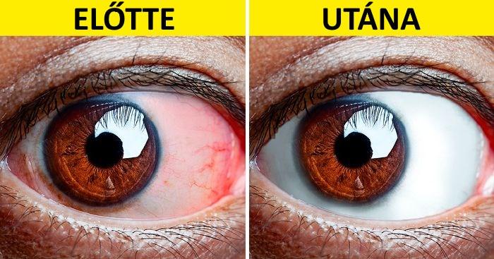 a sírás rontja a látást mit érdemes jobban bevenni a látás helyreállításához