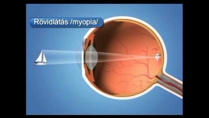 gyakorlatokkal javítható a látás vásároljon elegáns szemüveget