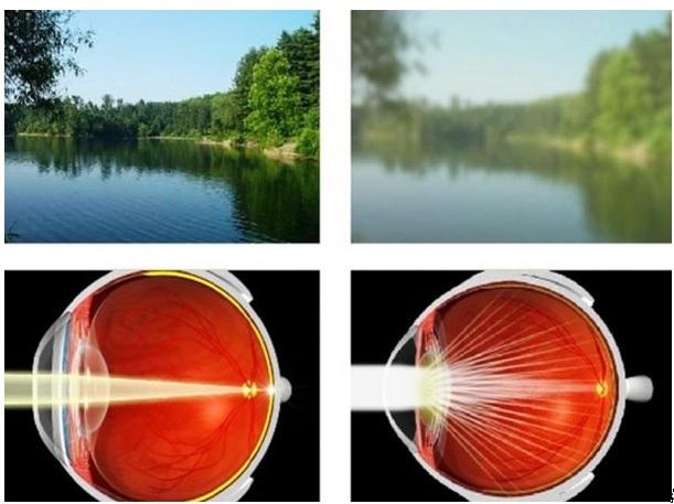 a látás folyamatosan romlik