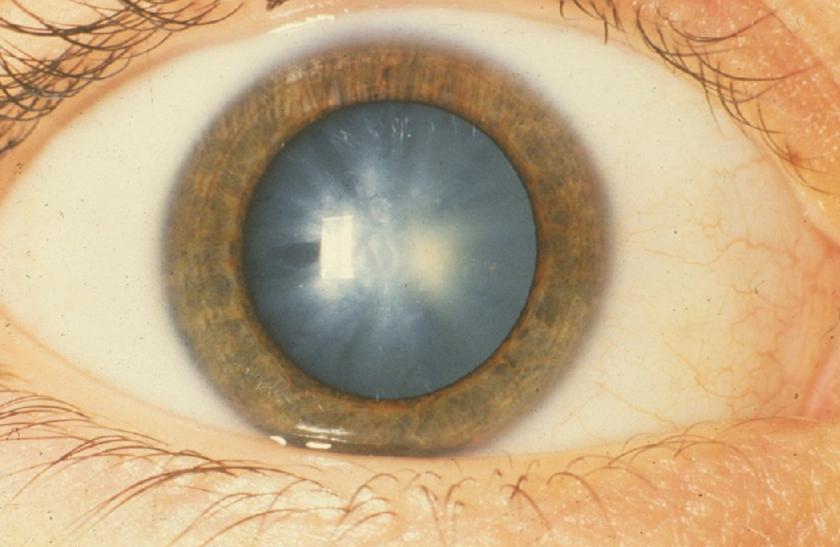 hogyan lehet tudni, ha romlik a látás maszturbációs látás