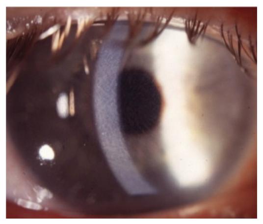 FEMTO (IntraLASIK) lézeres szemműtét tapasztalatok - Makeup Blog