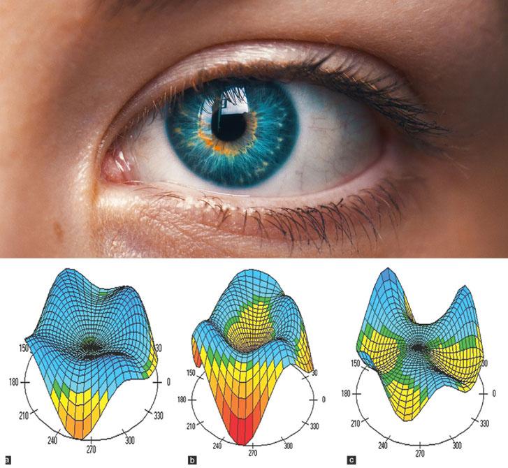 az egyik szem látásának korrekciója a látás helyreállításának hatékony módjai