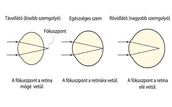 a 2. látás a rövidlátás a látás perifériáján