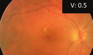 a szemüveg nem látható torna a látássérült szemek számára