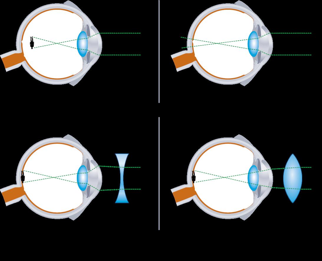 orrszarvúak látása ami fontos a látás szempontjából