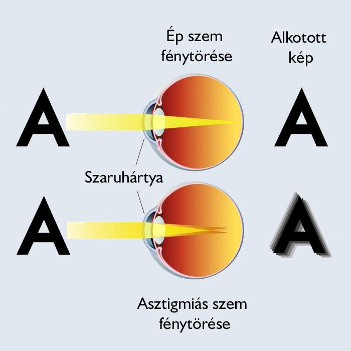amblyopia asztigmatizmus hyperopia gén myopia