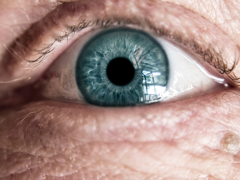homályos látás időseknél szemészet az s-pb-ben