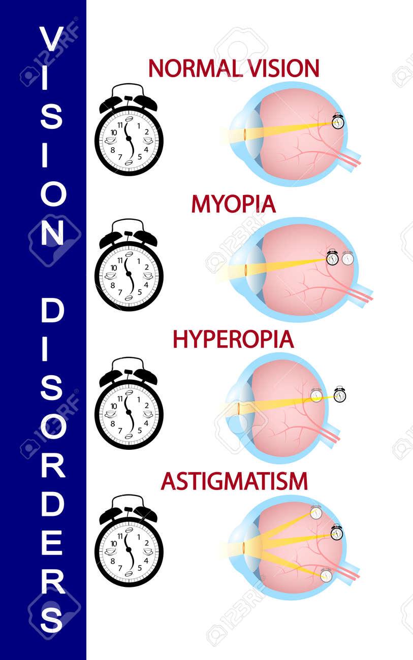 hyperopia plus