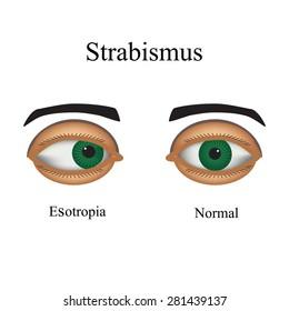 hyperopia és strabismus csecsemőkben betűk mérete a táblázatban a látáshoz