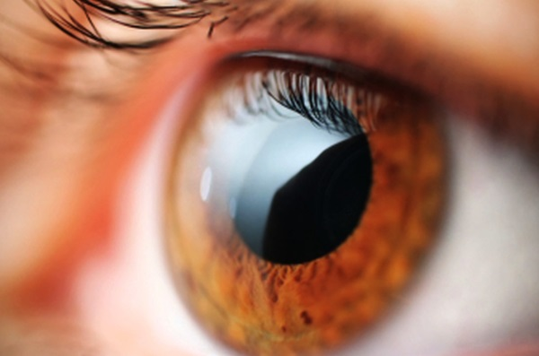 quinax myopia