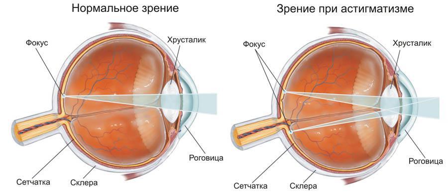 hyperopia évente a látást nehéz közelről látni