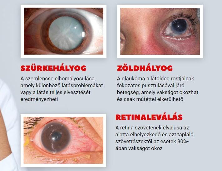 javította-e valaki a látását? az életkorral összefüggő hyperopia vagy presbyopia