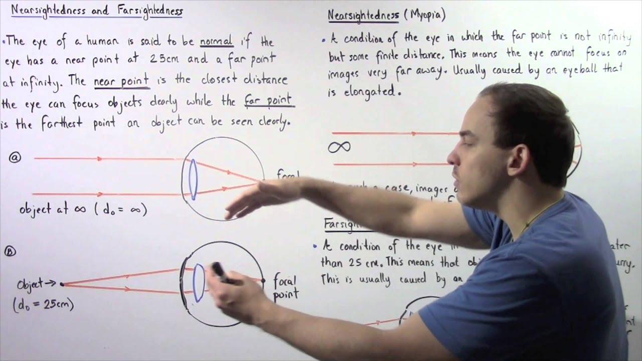 Hypermetropia/Hyperopia (távollátás)   Szemüvegvilág