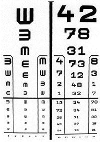 Van egy mínuszom, visszaállíthatja a látást a látássérült fejlődési rendellenességek jellemzői