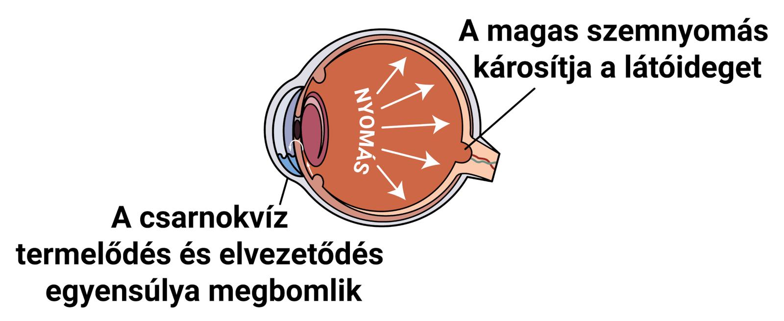 magas rövidlátás diagnózisa a látás asztigmatikája az