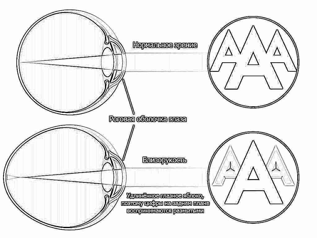 gerinc látási problémák aloe látáshoz minden recept