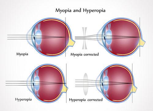 myopia tengely)