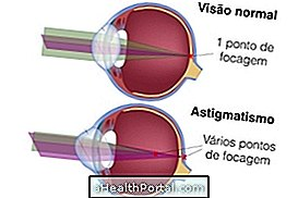 mi az asztigmatizmus látása mi a plusz és mínusz látás
