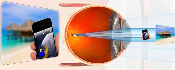 Myopia - fok, kezelés, myopia korrekció, szem gyakorlatok - Injekciók September