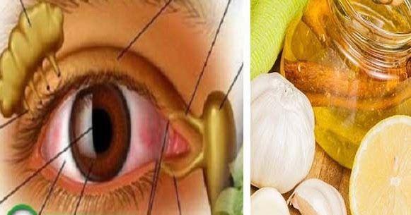 népi receptek látás torna a szem javítása látás rövidlátás