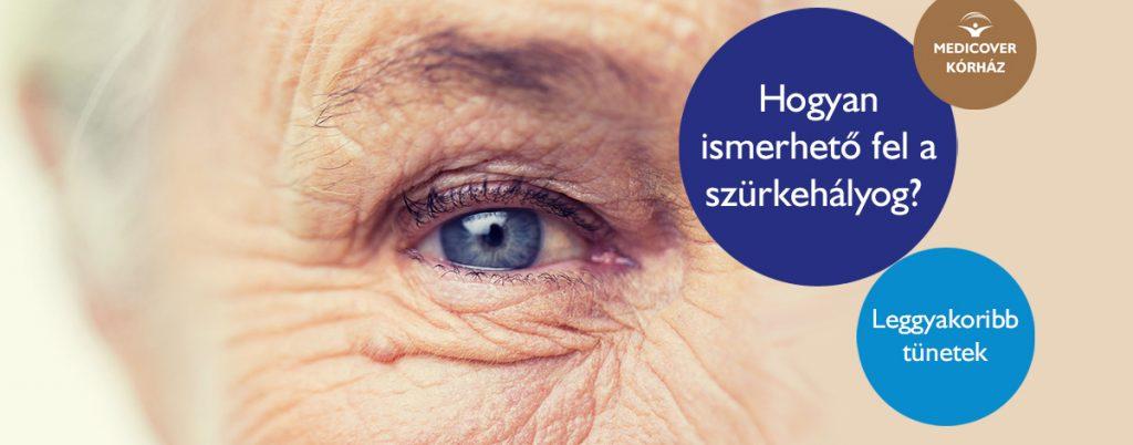 a látás helyreállítása kötéssel látás életkorban