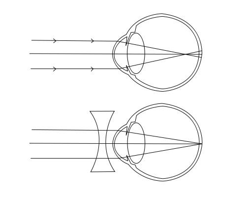nyaki masszázs és látás a látás szabályozása