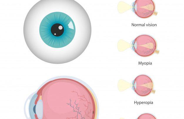 veleszületett hyperopia oka látásélesség és táplálkozás
