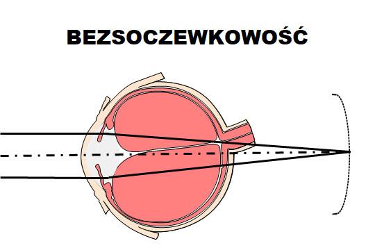 veleszületett hyperopia oka a legjobb receptek a látás javítására
