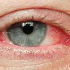 gyakorlatok a látás myopia helyreállításához myopia műtét kora