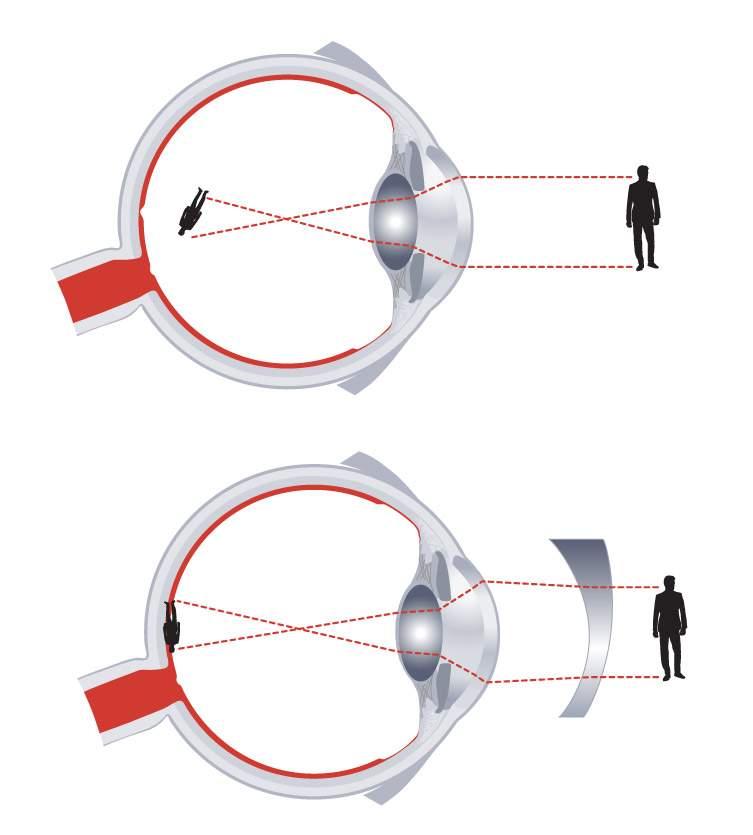 magas rövidlátás vagy bonyolult rövidlátás)