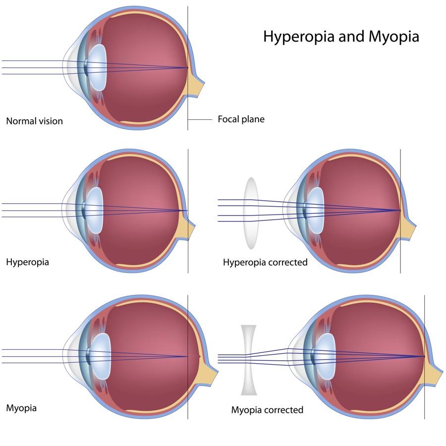 hyperopia 60 év után miért rossz látás a jobb szemen