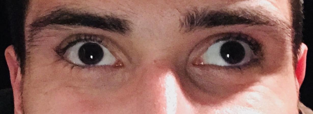 Myopia és astigmatizmus csecsemőknél