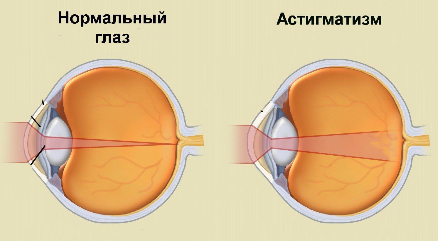 rossz látósejt myopia a lányokban
