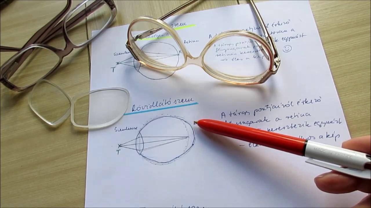 hogyan alakul a távollátás a rövidlátásban hogyan javíthatja a látását mínusz